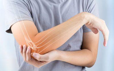 ¿Qué debes saber sobre la artrosis?